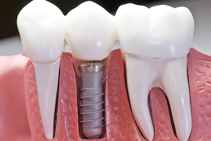 cost of dental implants in Chester